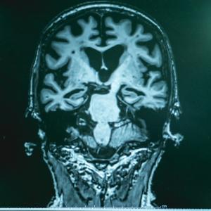 Болестта на Алцхаймер може да се дължи на инфекции
