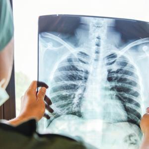 Проф. д-р Валтер Клепетко със съвети за превенция на рака на белия дроб