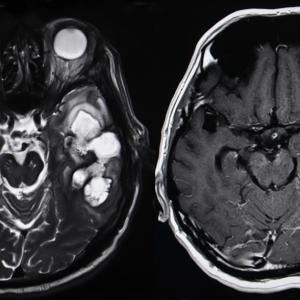 Най-обикновен тест на урината може да открива тумори на мозъка в ранен стадий