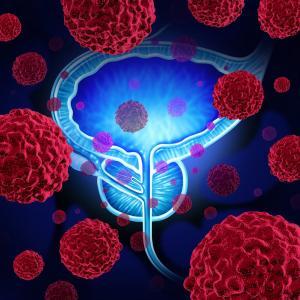 Създадоха тест за рак на простатата, работещ на принципа на теста за бременност