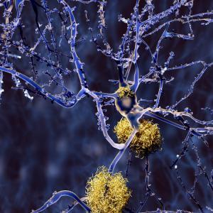 Ново проучване идентифицира потенциалната причина за Алцхаймер