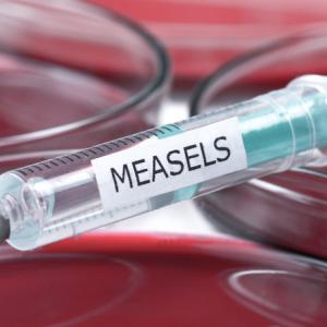 Морбили: За и против ваксинацията