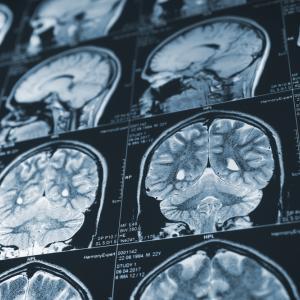 Франция спря проучванията на прионовите болести, след като втори лаборант хвана смъртоносно мозъчно заболяване