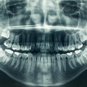 Ето как експлодиращите звезди са образували калция в нашите зъби и кости