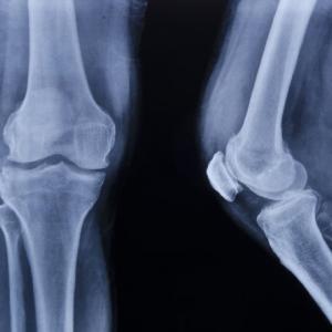 20 октомври - Световен ден за борба с остеопорозата