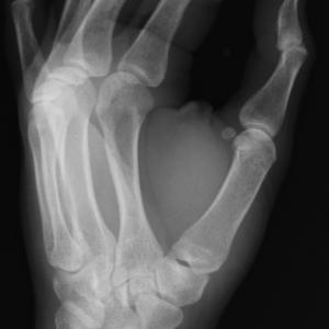 Рентгеновите лъчи са открити съвсем случайно