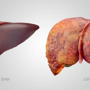 Вашият черен дроб може да се увреди от алкохол, дори и да не пиете