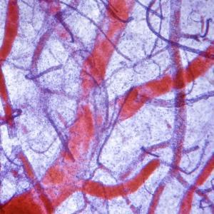 Пасивното пушене уврежда артериите на децата
