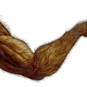 Чували ли сте за хипертрихоза - синдром на върколака?