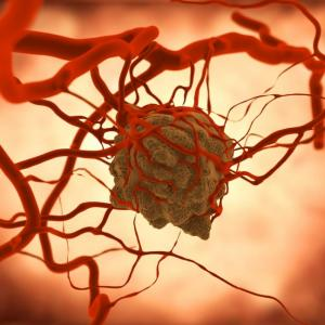 Ако клетките около тумора се поддържат живи, разпространението на рака спира